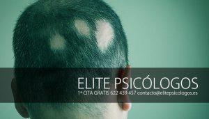 alopecia-areata-en-niños-tratamiento