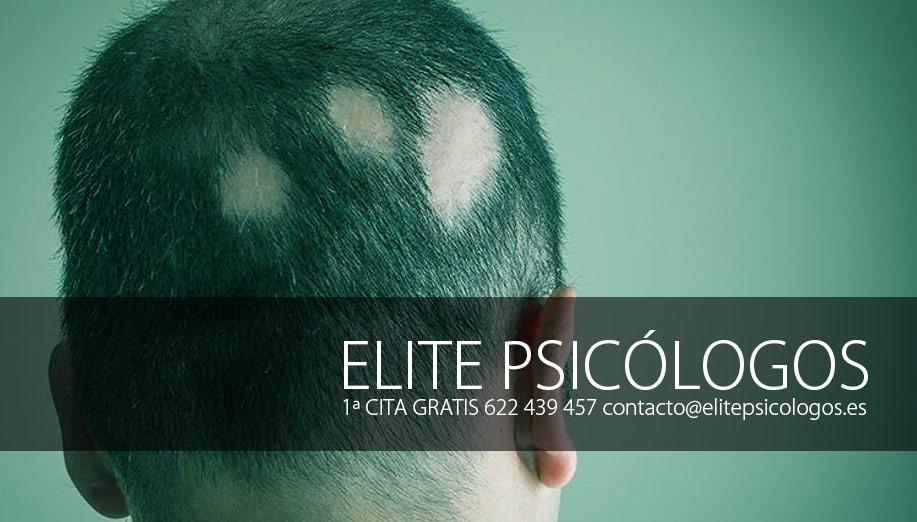 Alopecia areata en niños ¿Necesita tratamiento psicológico?