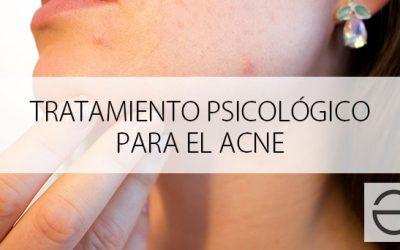Tratamiento psicológico para el acné